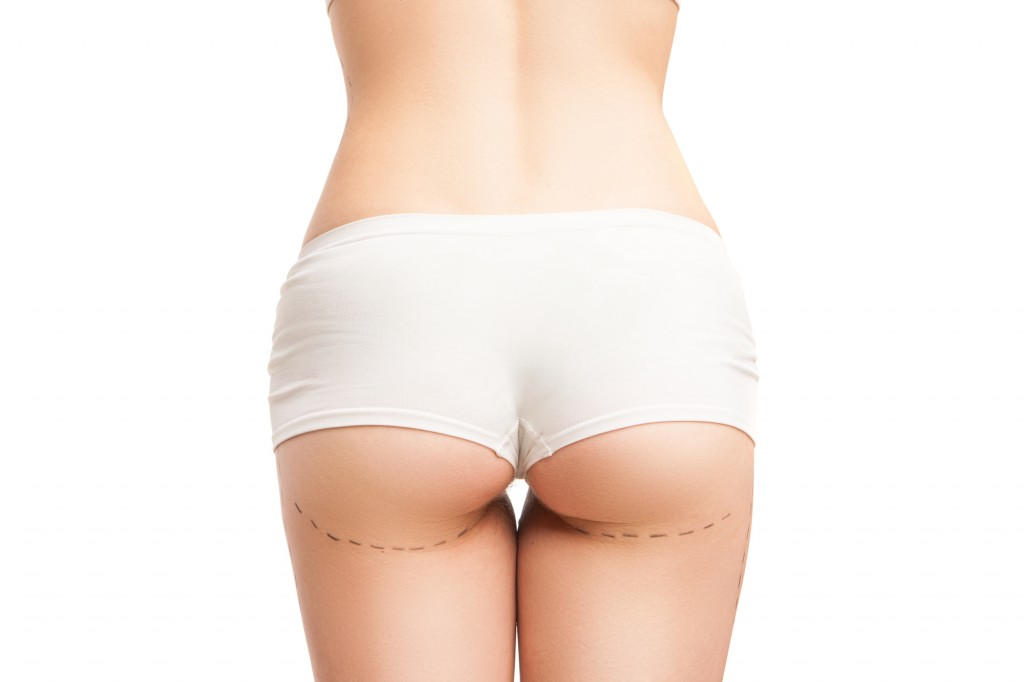 Unrecognizable woman in white panties with liposuction outlines.Isolated