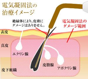 wakiga_detail1